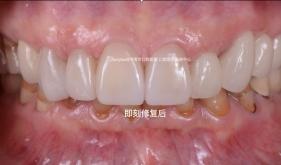 前牙全瓷冠美学修复