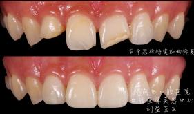 前牙缺损树脂修复病例