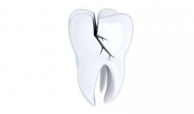 没有蛀牙却牙痛!当心牙隐裂