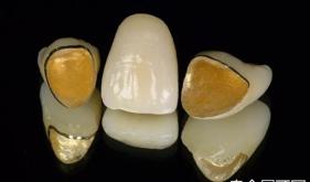 种植牙后是否可以做核磁共振?